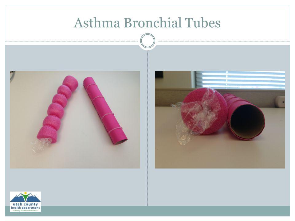 Asthma Bronchial Tubes