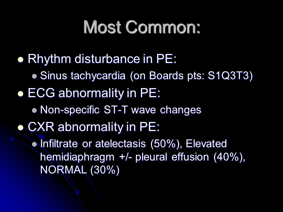 Most Common: Rhythm disturbance in PE: ECG abnormality in PE: