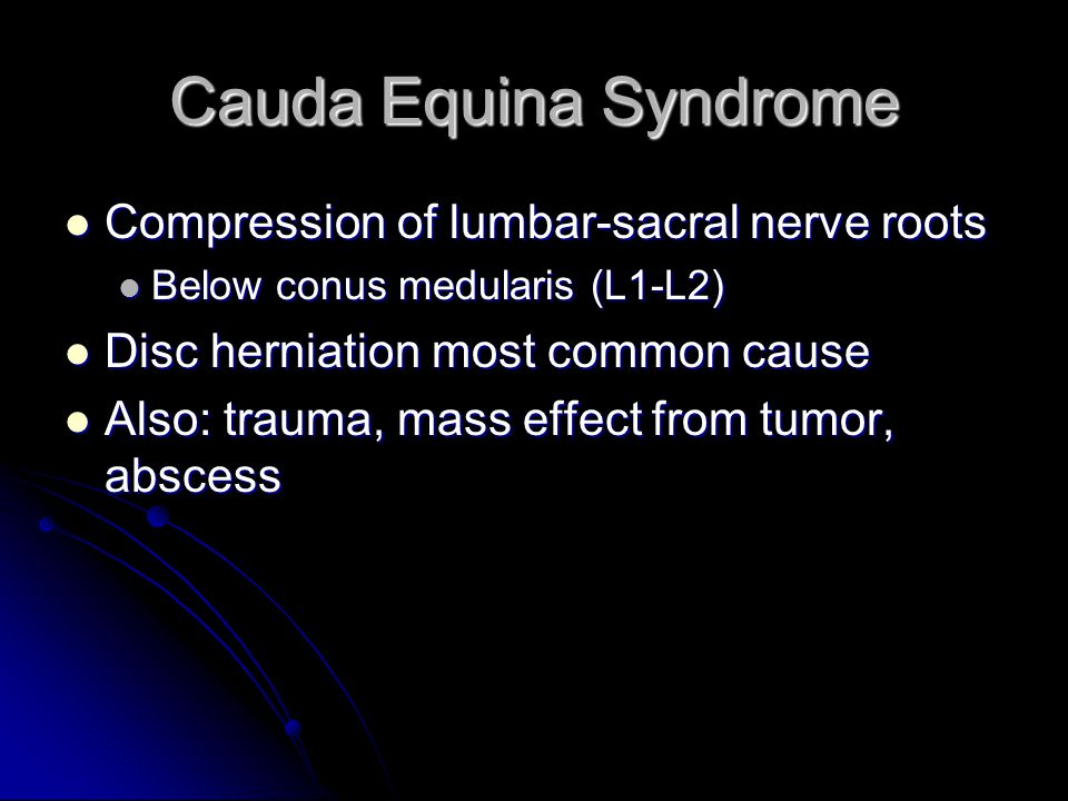 Cauda Equina Syndrome Compression of lumbar-sacral nerve roots