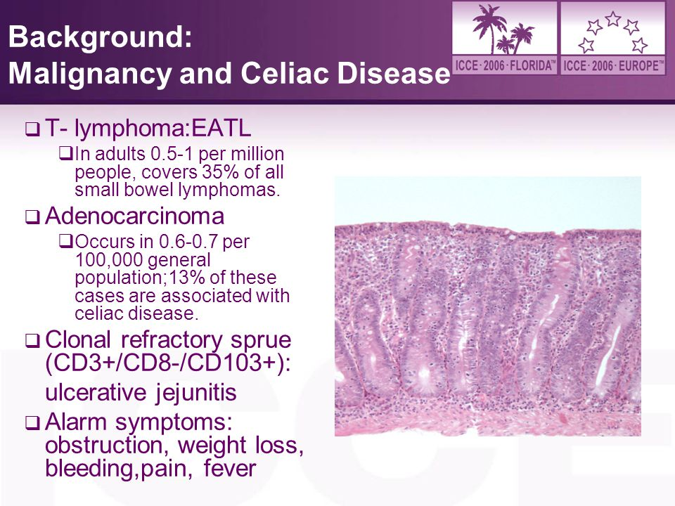 Background: Malignancy and Celiac Disease