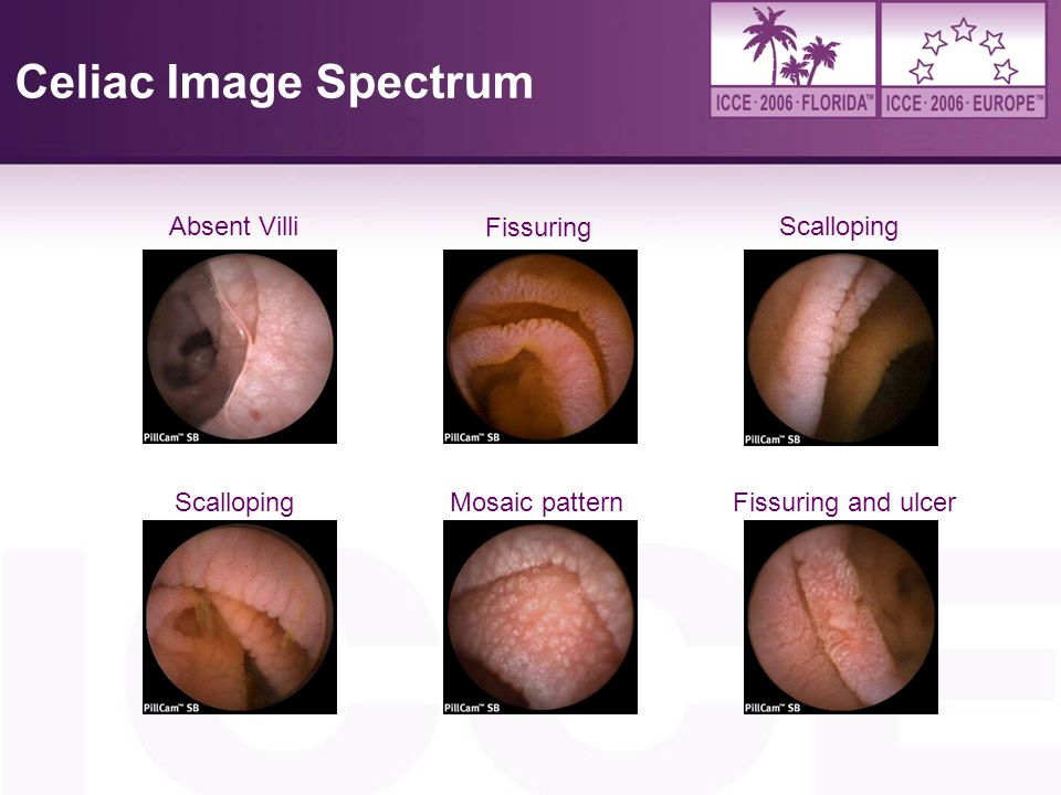 Celiac Image Spectrum Absent Villi Fissuring Scalloping Scalloping
