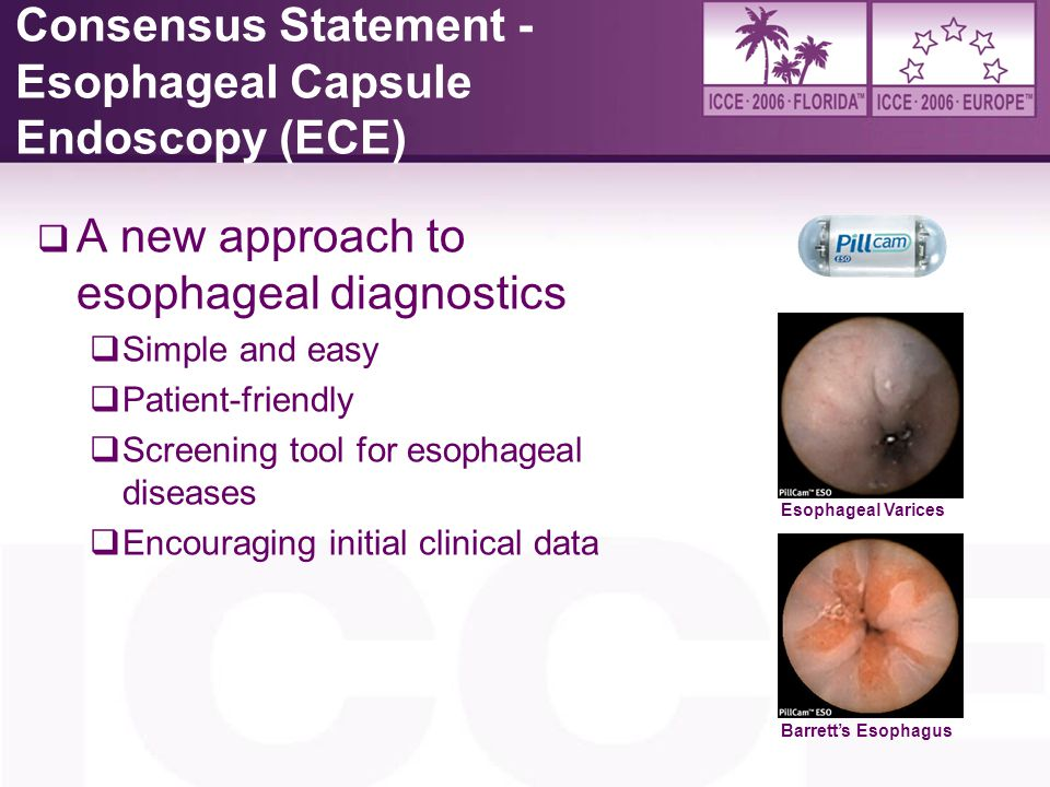 Consensus Statement - Esophageal Capsule Endoscopy (ECE)