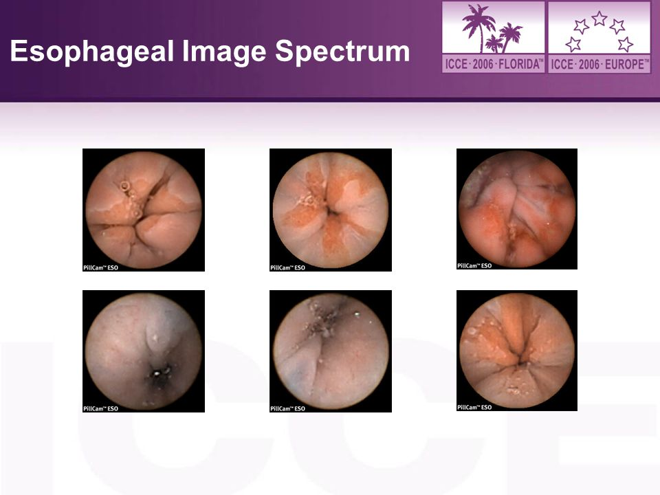Esophageal Image Spectrum