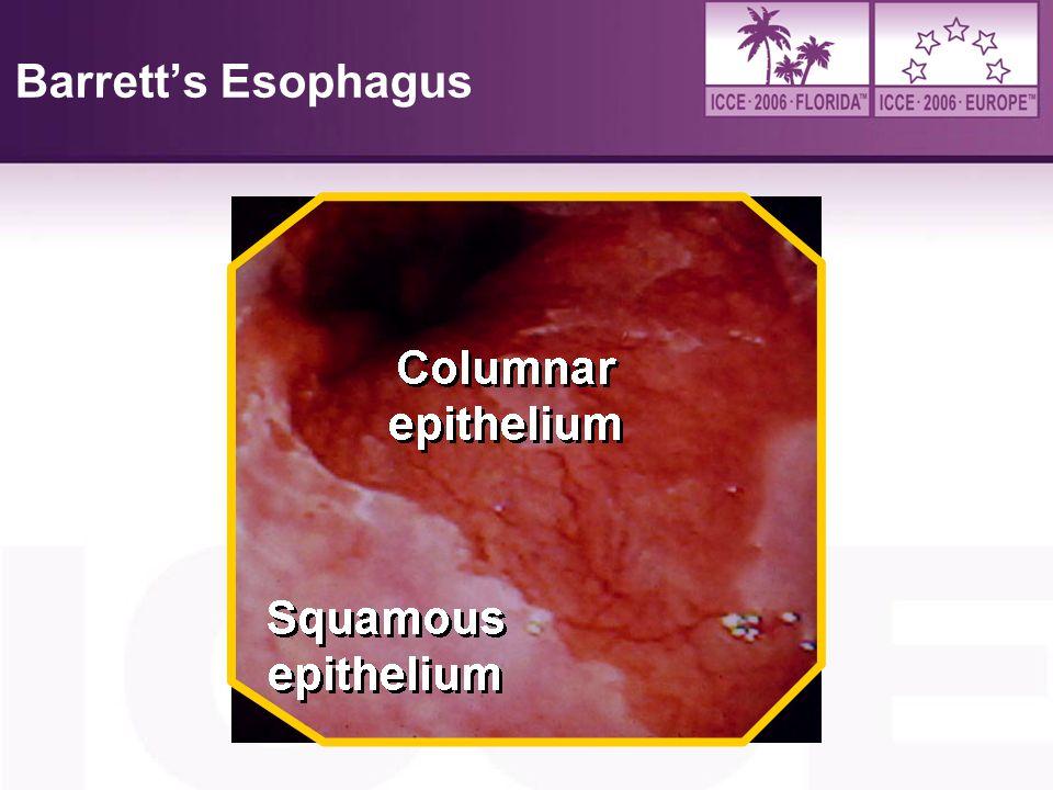 Barrett's Esophagus 4/6/2017