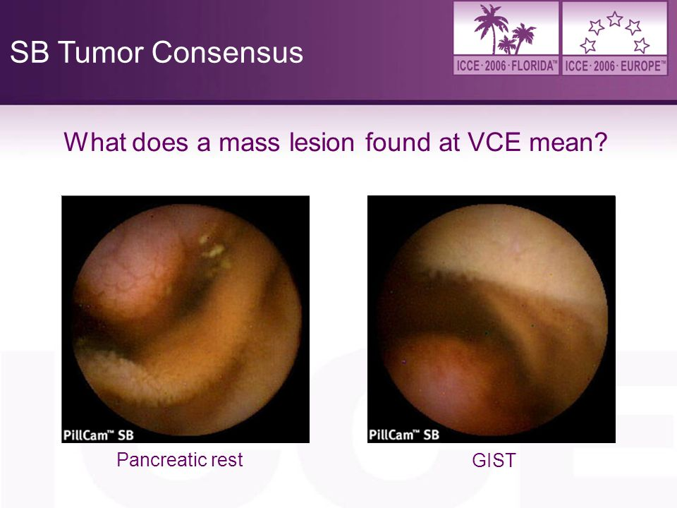 SB Tumor Consensus What does a mass lesion found at VCE mean