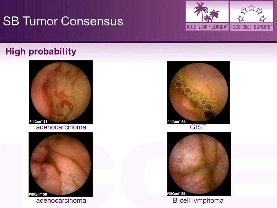 SB Tumor Consensus High probability adenocarcinoma GIST adenocarcinoma