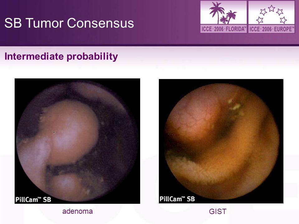 4/6/2017 SB Tumor Consensus Intermediate probability adenoma GIST