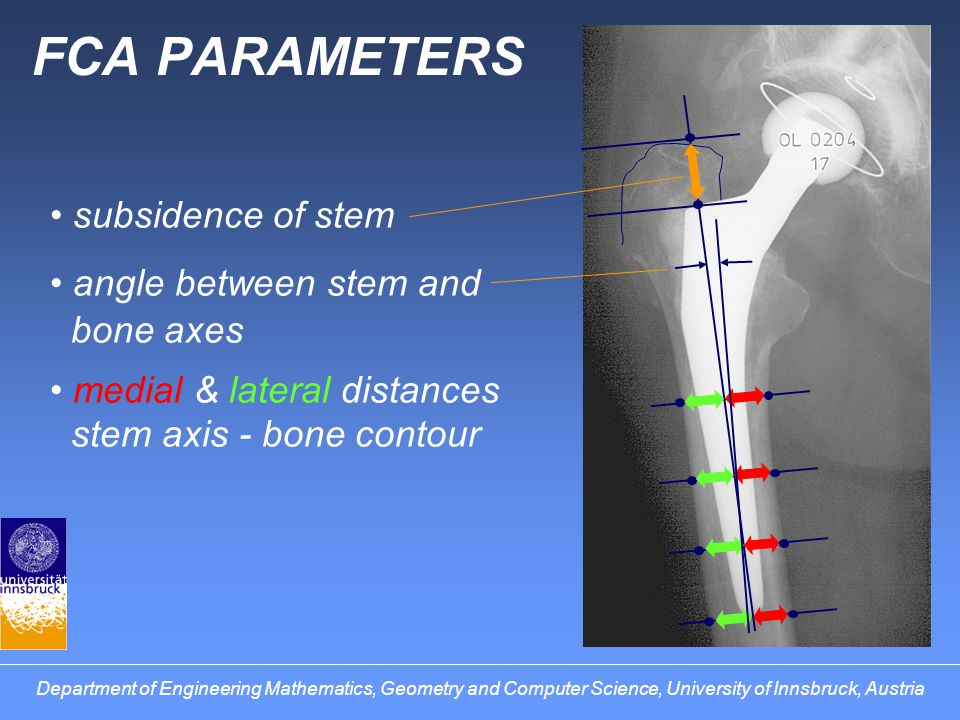 FCA PARAMETERS subsidence of stem angle between stem and bone axes