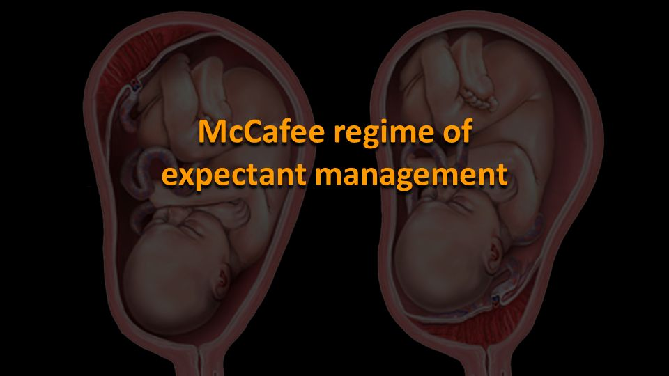 McCafee regime of expectant management
