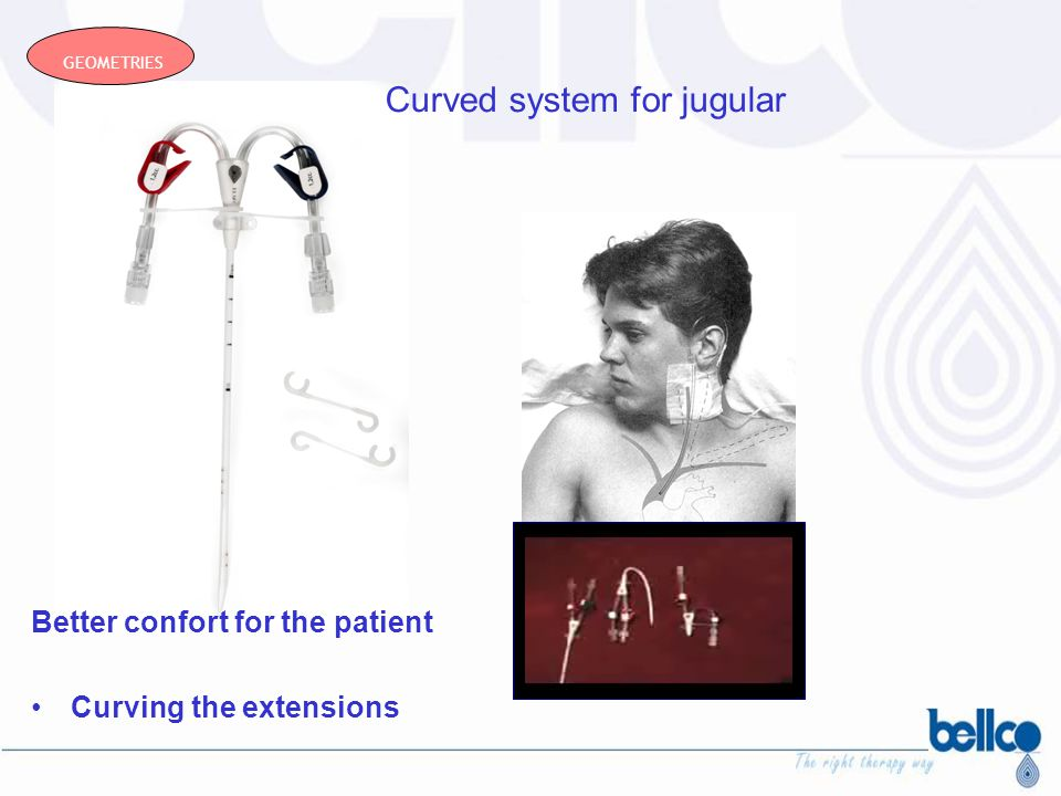 Curved system for jugular