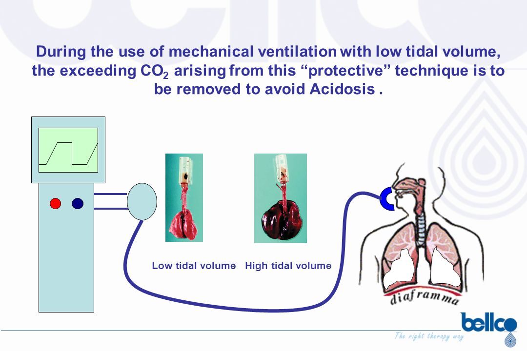 During the use of mechanical ventilation with low tidal volume, the exceeding CO2 arising from this protective technique is to be removed to avoid Acidosis .