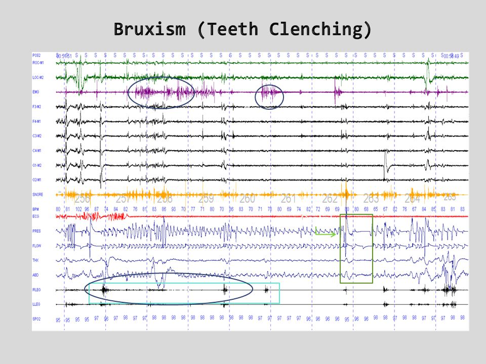 Bruxism (Teeth Clenching)