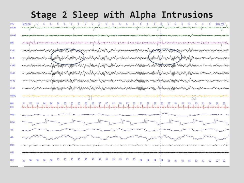 Stage 2 Sleep with Alpha Intrusions