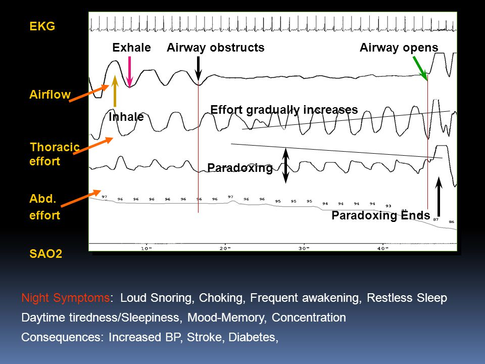 EKG Airflow. Thoracic effort. Abd. effort. SAO2. Exhale. Airway obstructs. Airway opens. Effort gradually increases.