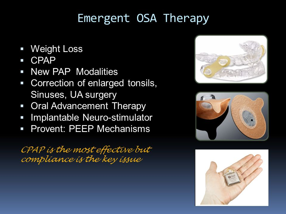 Emergent OSA Therapy Weight Loss CPAP New PAP Modalities