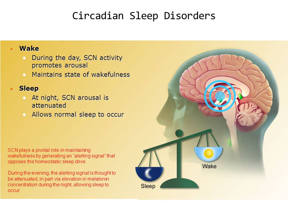 Circadian Sleep Disorders