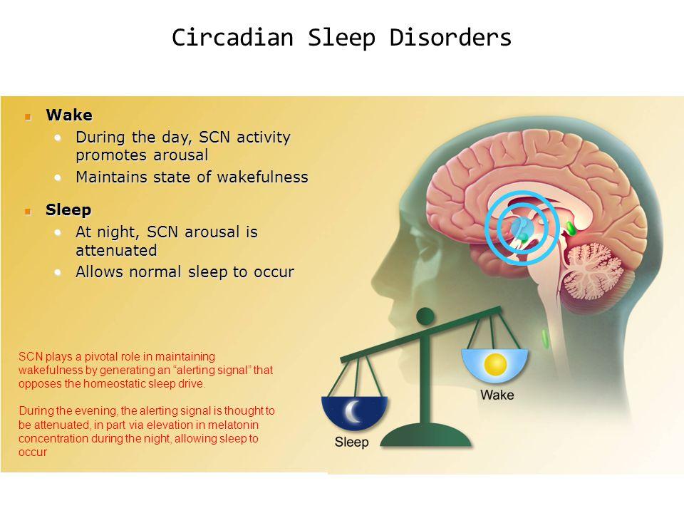 Circadian Sleep Disorders