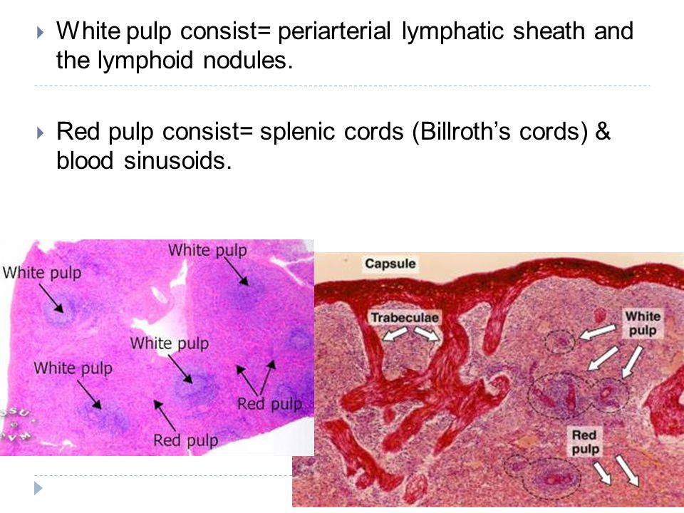 White pulp consist= periarterial lymphatic sheath and the lymphoid nodules.