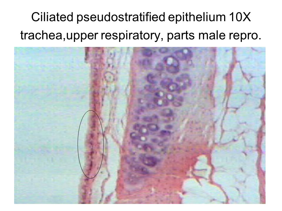 Ciliated pseudostratified epithelium 10X trachea,upper respiratory, parts male repro.
