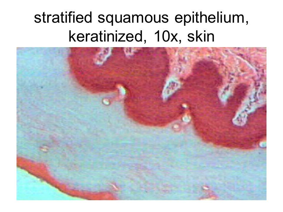 stratified squamous epithelium, keratinized, 10x, skin