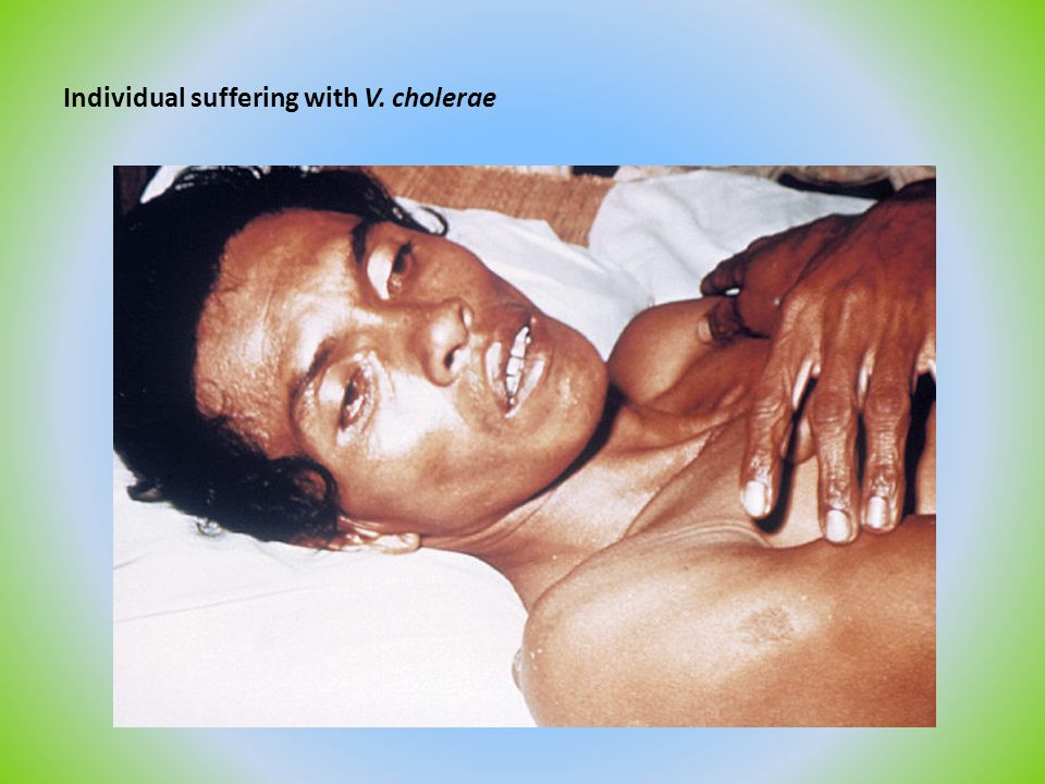 Individual suffering with V. cholerae