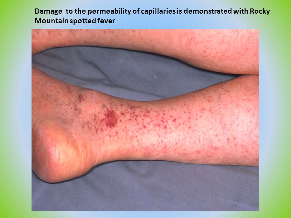 Damage to the permeability of capillaries is demonstrated with Rocky Mountain spotted fever