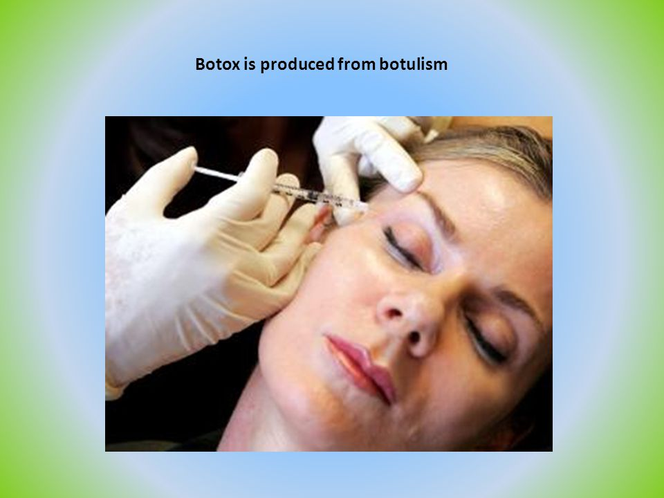 Botox is produced from botulism