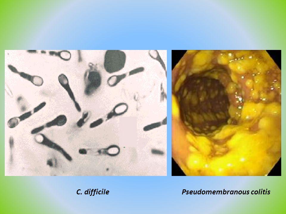 C. difficile Pseudomembranous colitis