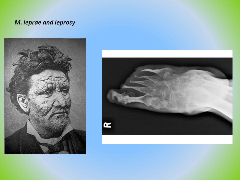 M. leprae and leprosy