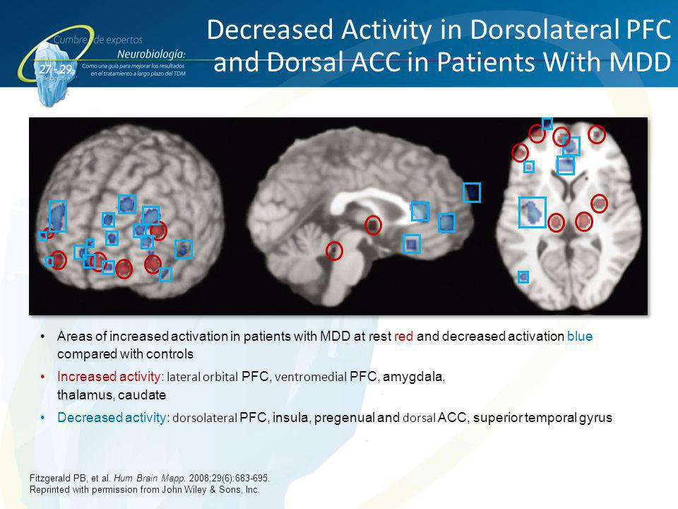 Decreased Activity in Dorsolateral PFC and Dorsal ACC in Patients With MDD