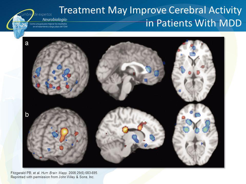 Treatment May Improve Cerebral Activity in Patients With MDD