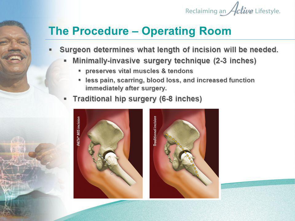 The Procedure – Operating Room