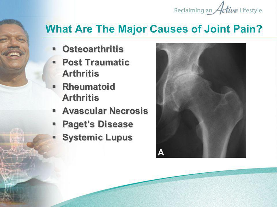 What Are The Major Causes of Joint Pain