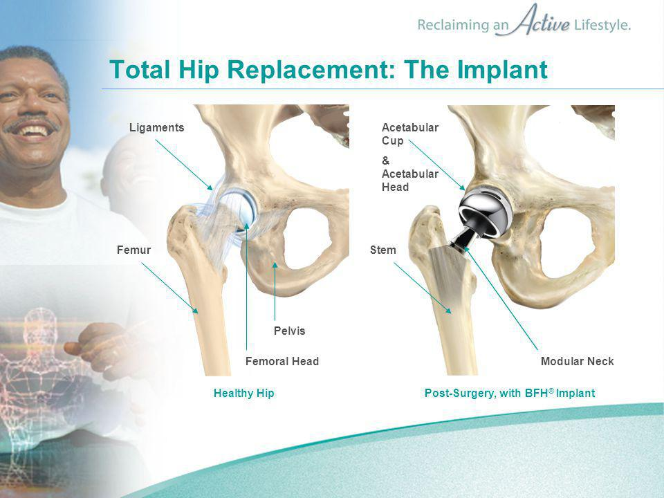Total Hip Replacement: The Implant