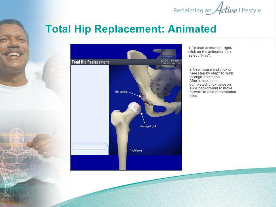 Total Hip Replacement: Animated