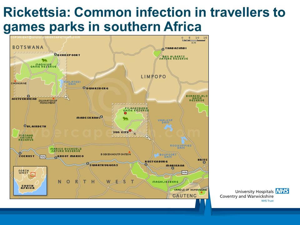 Rickettsia: Common infection in travellers to games parks in southern Africa