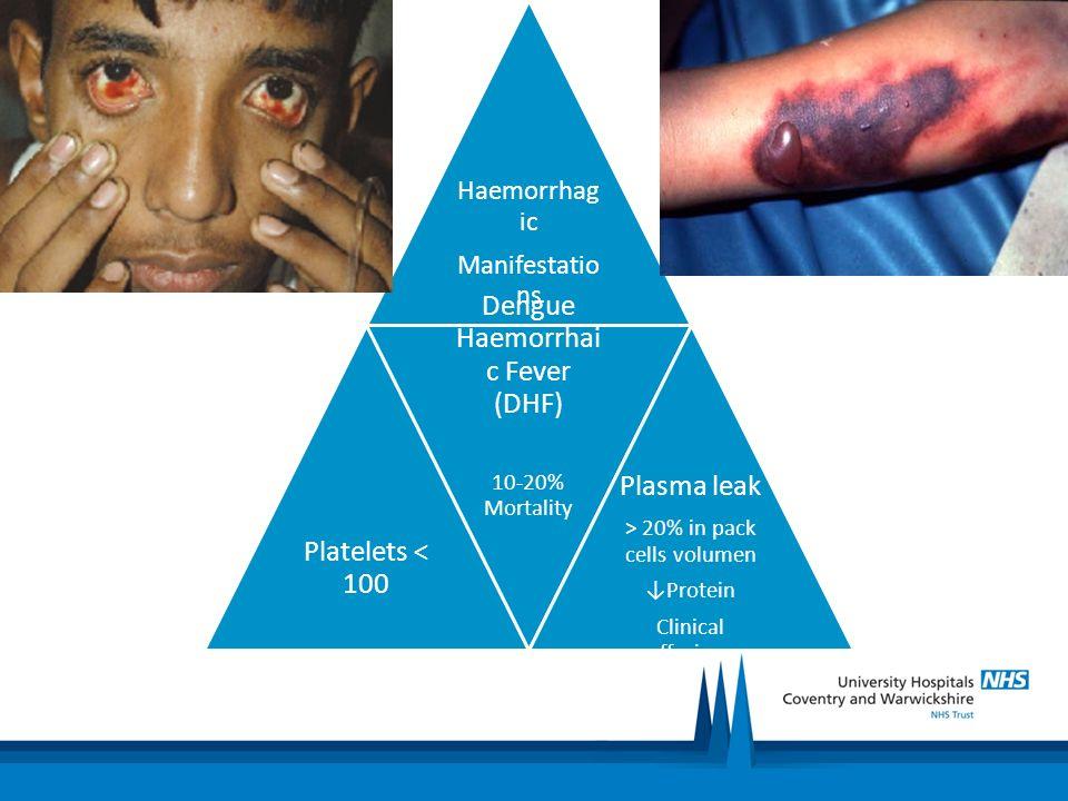 Dengue Haemorrhaic Fever (DHF) Plasma leak