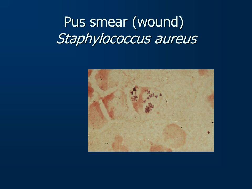 Pus smear (wound) Staphylococcus aureus