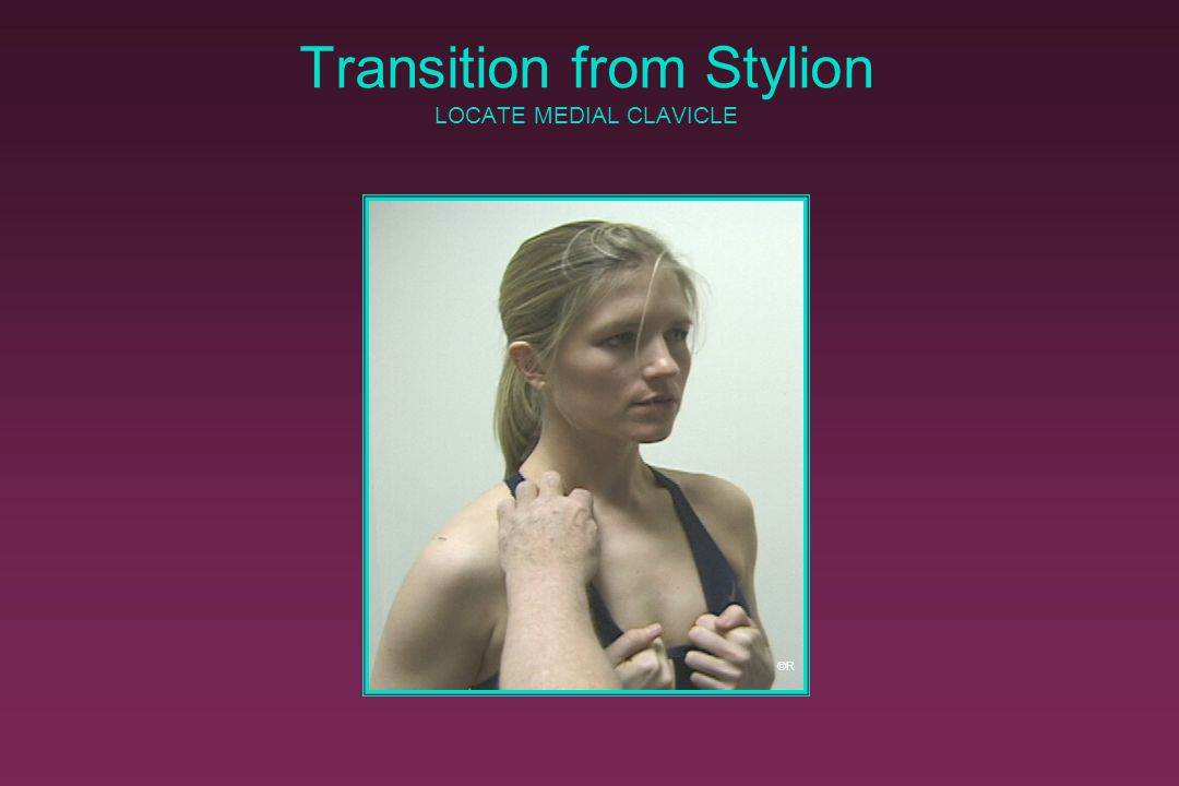 Transition from Stylion LOCATE MEDIAL CLAVICLE
