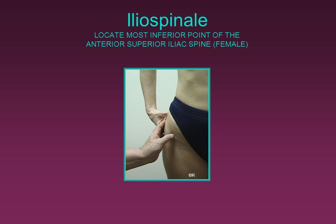 Iliospinale LOCATE MOST INFERIOR POINT OF THE ANTERIOR SUPERIOR ILIAC SPINE (FEMALE)