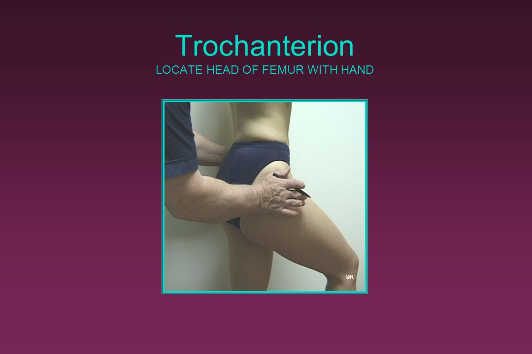 Trochanterion LOCATE HEAD OF FEMUR WITH HAND