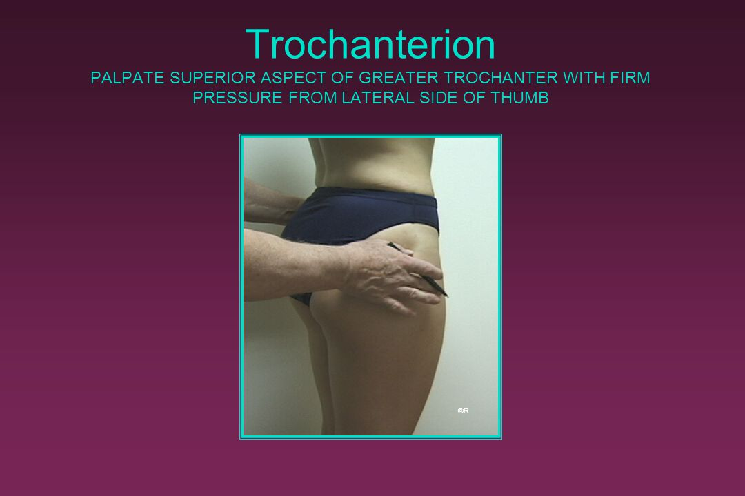 Trochanterion PALPATE SUPERIOR ASPECT OF GREATER TROCHANTER WITH FIRM PRESSURE FROM LATERAL SIDE OF THUMB