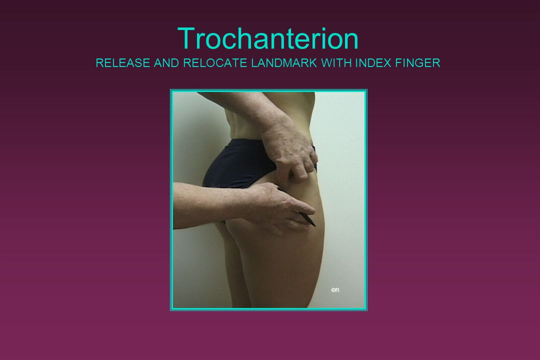 Trochanterion RELEASE AND RELOCATE LANDMARK WITH INDEX FINGER