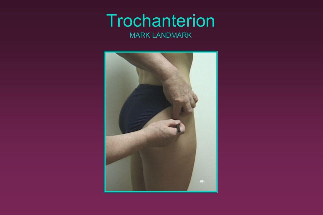 Trochanterion MARK LANDMARK