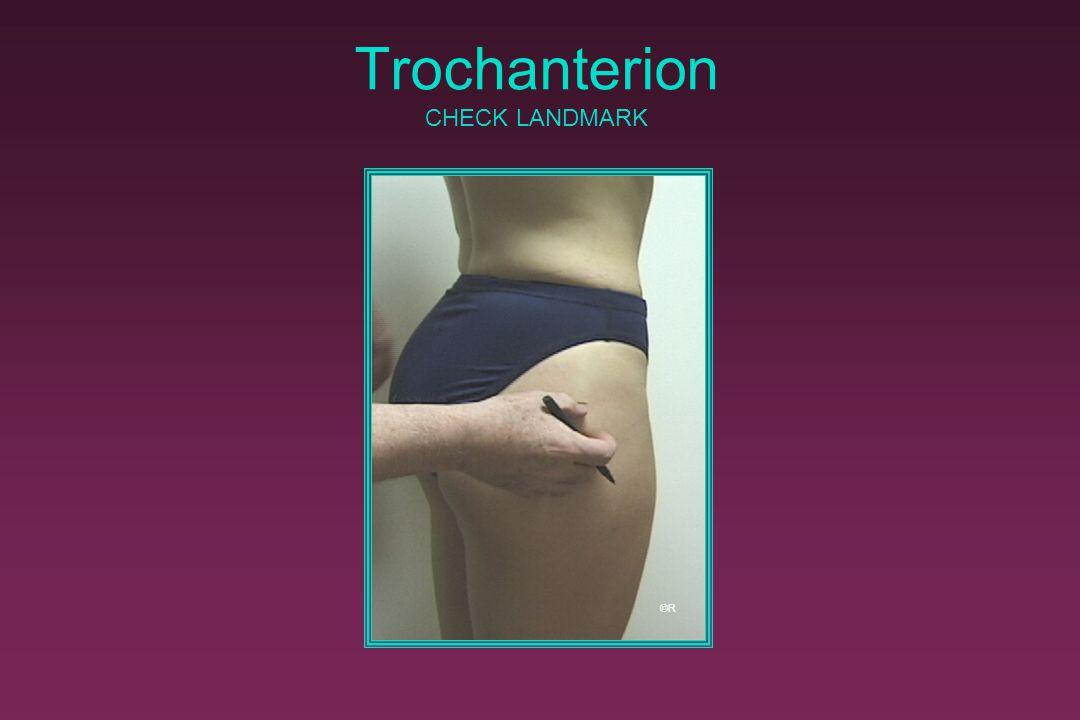 Trochanterion CHECK LANDMARK