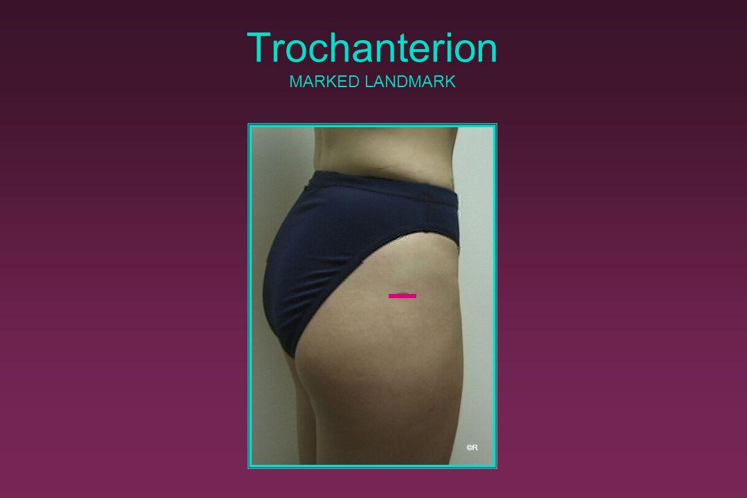 Trochanterion MARKED LANDMARK