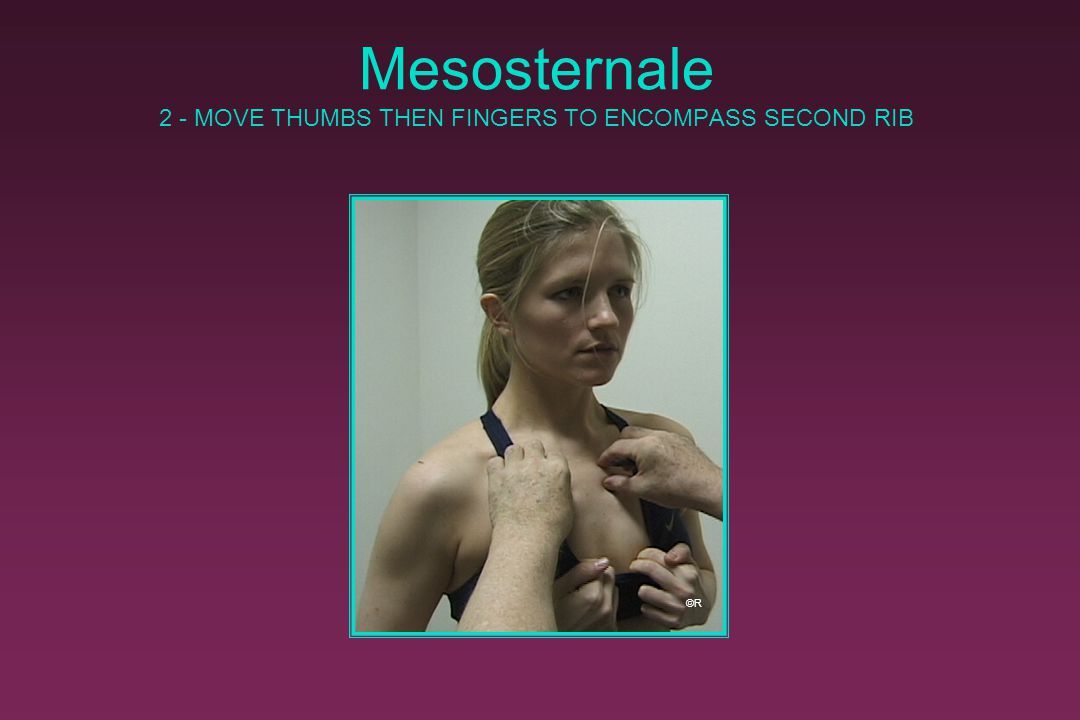 Mesosternale 2 - MOVE THUMBS THEN FINGERS TO ENCOMPASS SECOND RIB