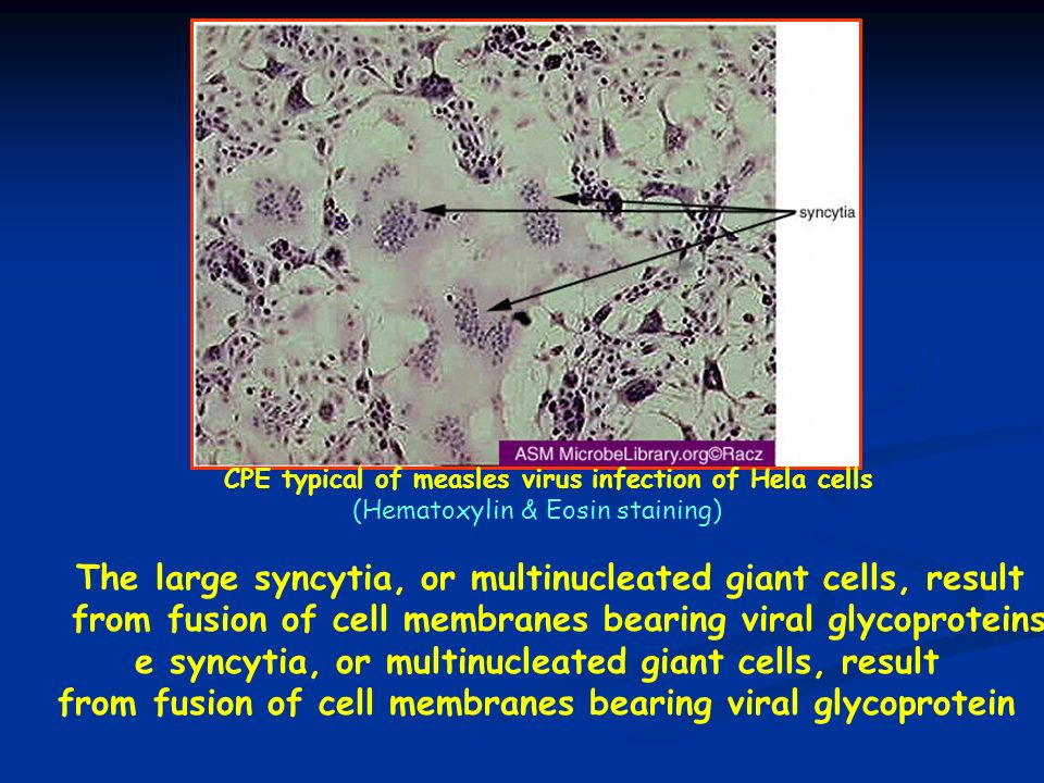 ( The large syncytia, or multinucleated giant cells, result