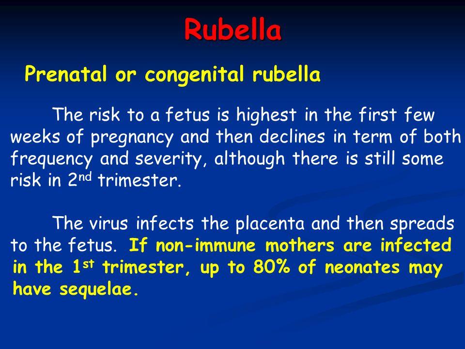 Rubella Prenatal or congenital rubella