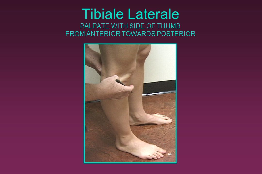 Tibiale Laterale PALPATE WITH SIDE OF THUMB FROM ANTERIOR TOWARDS POSTERIOR